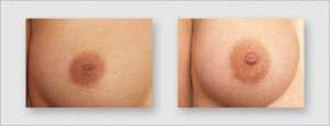 nipple alignment treatment symmetry clinic mumbai