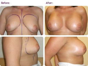 Techniques Of Breast Lift Surgery