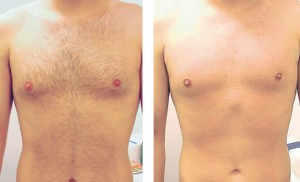 Laser Hair Removal For Men in Lokhandwala