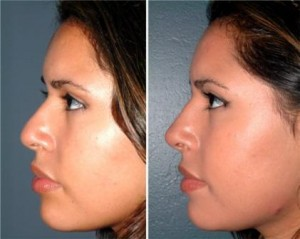 Nose Cosmetic Surgery Doctor Clinics in Andheri Mumbai
